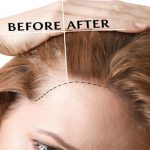 A complete guide to hair transplant recovery